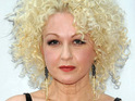 "Cyndi Lauper is said to be ""fine"" after a spa visit left her with a red rash on her face."