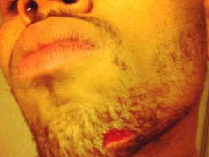 Chris Brown&#39;s cut chin