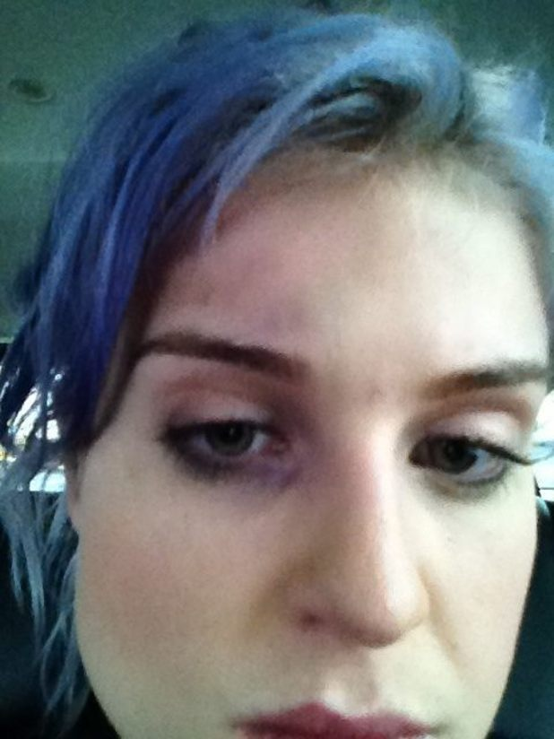 Kelly Osbourne posts a picture of her black eye