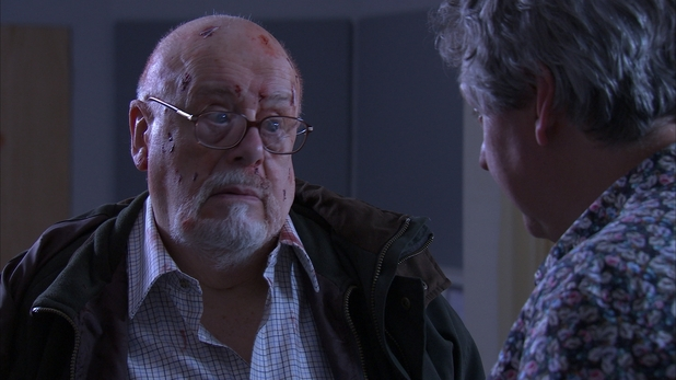 John Savident in Holby City