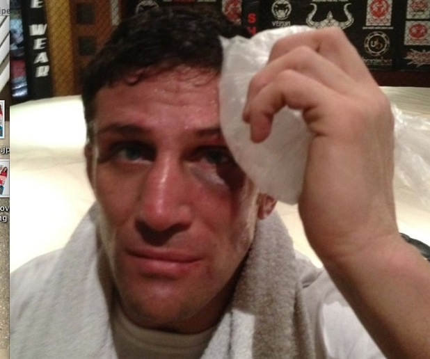 Alex Reid places ice on his black eye