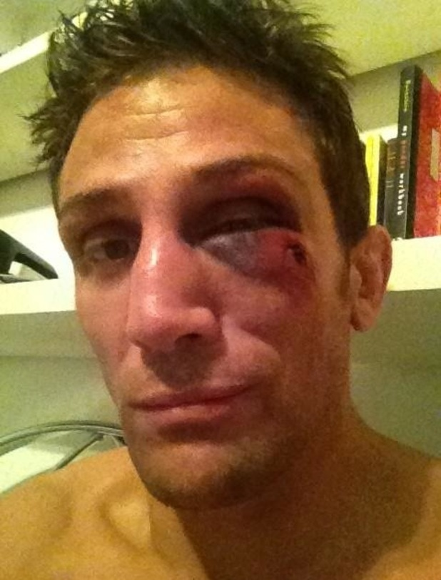 Alex Reid shows off his black eye