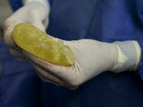 In this photo taken on Jan. 26, 2012, a plastic surgeon holds a broken PIP breast implant after it was removed from a patient at a clinic in Caracas, Venezuela.