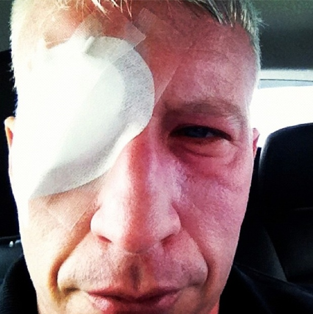 Anderson Cooper is temporarily blinded on assignment