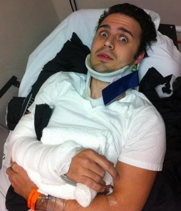 Kris Allen breaks his wrist in a car accident