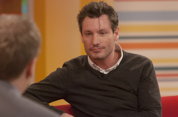 Dean Gaffney discusses his facial reconstructive surgery on 'Daybreak'