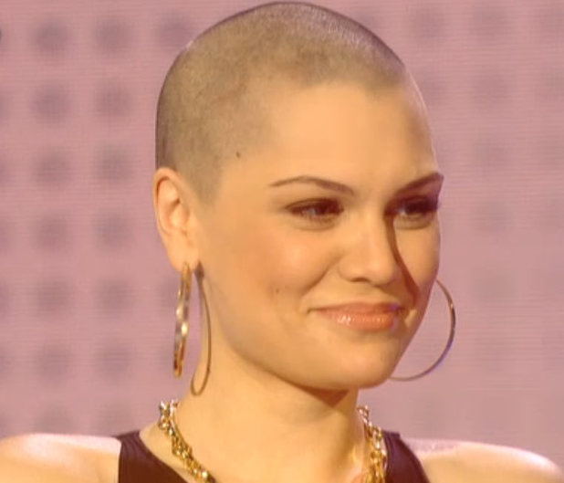 Jessie J with her hairless scalp for Comic Relief