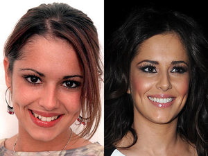 Cheryl Cole, teeth, before, after
