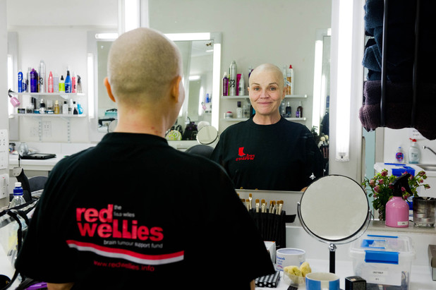 Lesley Dunlop after having her head shaved.