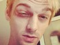 Aaron Carter 'attacked by NKOTB fans'