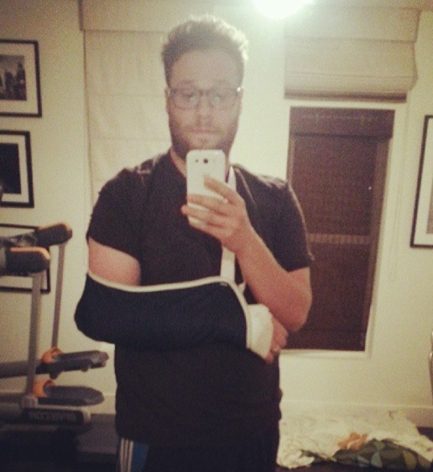 Seth Rogen shows off his sling after falling off his bike