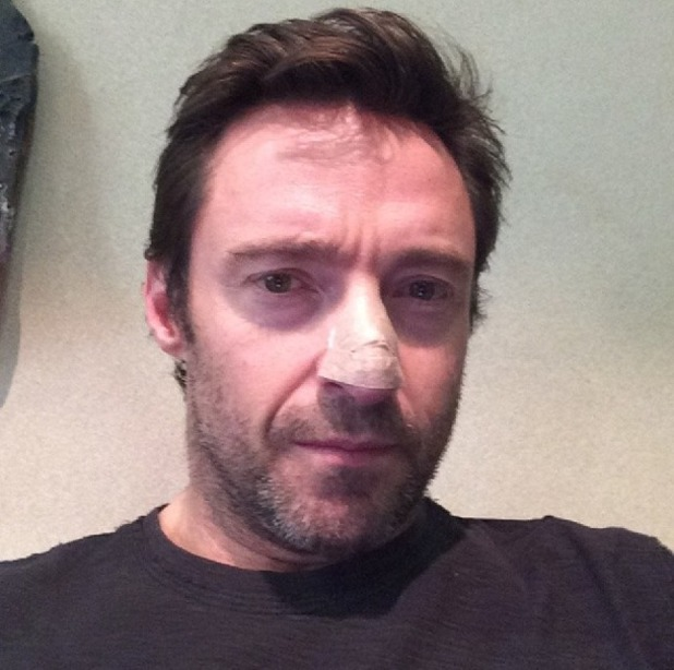 Hugh Jackman's instagram picture of bandaged nose