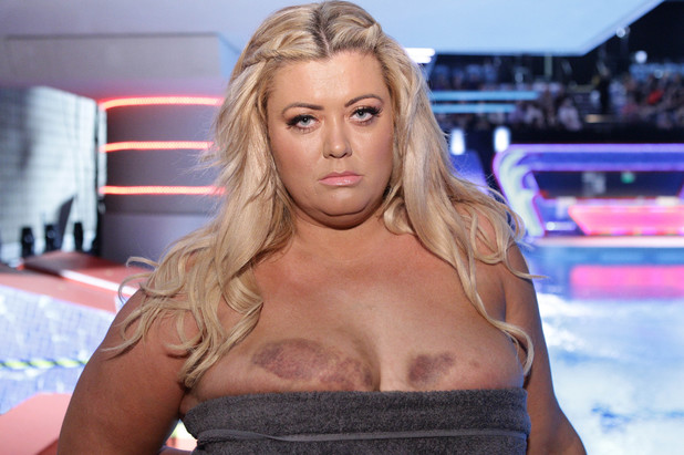 "'Splash' TV Programme, Luton, Britain. - 04 Jan 2014 Gemma Collins show the her bruised boobs Gemma said"" I'm battered and bruised but it's not going to stop me diving"" 4 Jan 2014"