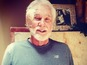 Kenny Rogers reveals skin cancer surgery