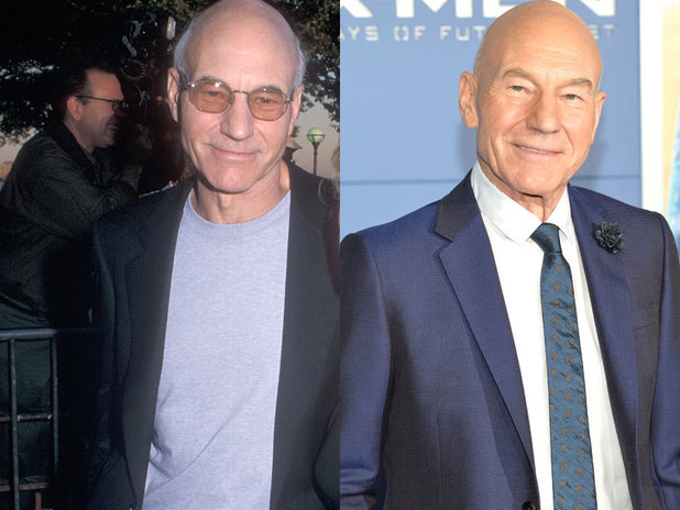 The cast of X-Men then and now: Patrick Stewart