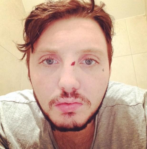 James Arthur involved in Polish bar brawl