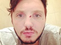 Popstar posts a picture of his face with a cut by his left eye.